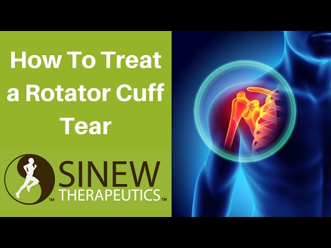 How To Treat a Rotator Cuff Tear and Speed Recovery
