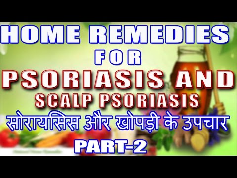 Home Remedies For Psoriasis & Scalp Psoriasis Part 2 II सोरायसिस & खोपड़ी सोरायसिस - उपचार भाग-2