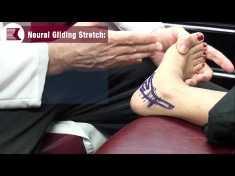 Stretches to Treat Your Nerve Pain
