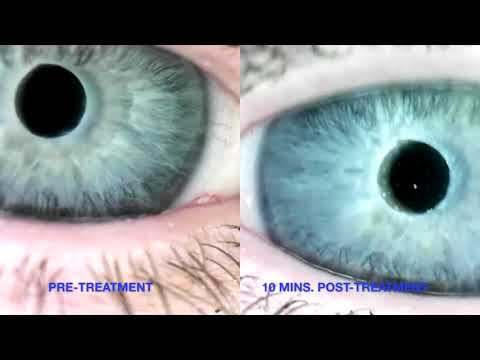 Dry Eye Patient with Sjogren's Syndrome Wearing Bandage Contact Lenses