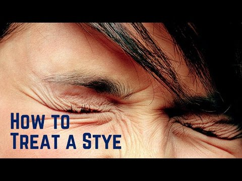 how to treat a stye in your eye