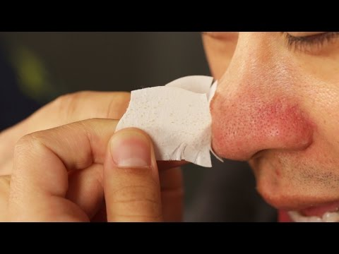 Guys Remove Their Blackheads
