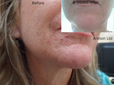Plasma Jowl Tightening training, Before, Healing and Afters.
