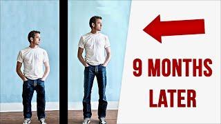 Shocking Facts About Leg-Lengthening Surgery