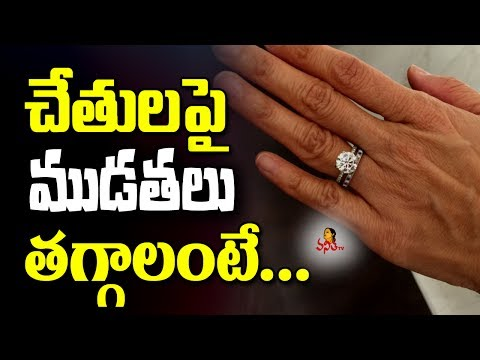 Natural Home Remedies To Remove Wrinkles From Hands || Beauty Tips || Vanitha TV