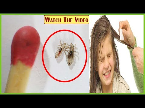 How To Get Rid of Lice Permanently | Home Remedies for Lice | Remove Hair Lice