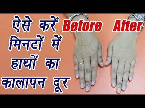Hand Scrub, Handmade | DIY | ऐसे करें मिनटों में हाथों का कालापन दूर |  BoldSky