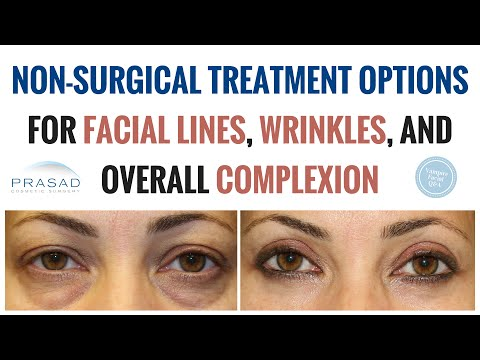 Improving Crow's Feet, Wrinkles, and Complexion with Limited Laser Use to Prevent Thinning Skin
