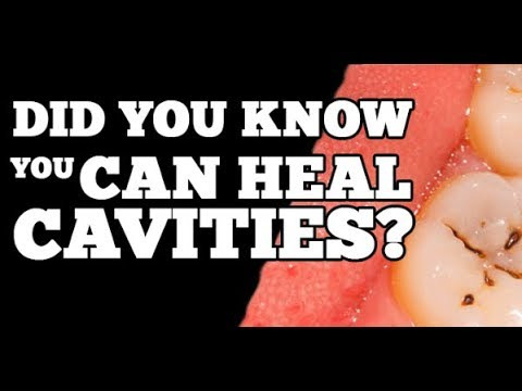 How to Prevent and Heal - Cavities & Tooth Decay Naturally - Toothache Remedies