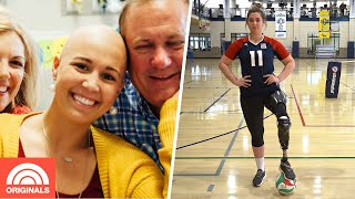 Cancer Survivor & World Champion Volleyball Player Opens Up On Her Amputation | TODAY