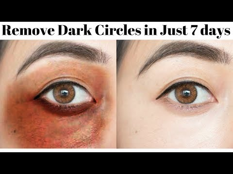 How To Remove Dark Circles, Puffy Eyes & Wrinkles In Just 7 Days | DIY Eye Roll On | 100% Effective