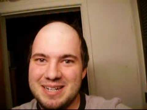 AS PROMISED - I shaved my head for charity!