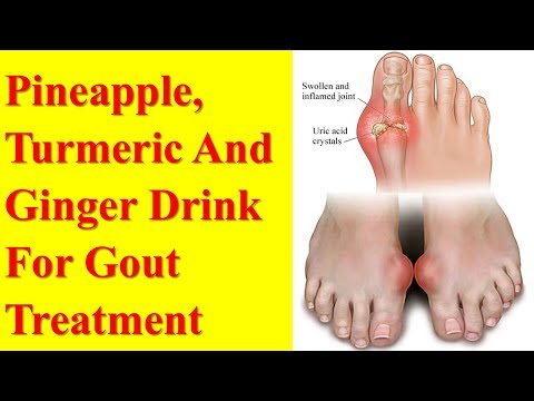 Pineapple, Turmeric And Ginger Drink For Gout Treatment