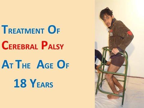 Cerebral Palsy Crouch Gait Treatment