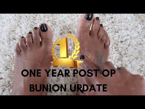 1 YEAR POST OP BUNION SURGERY UPDATE 2018