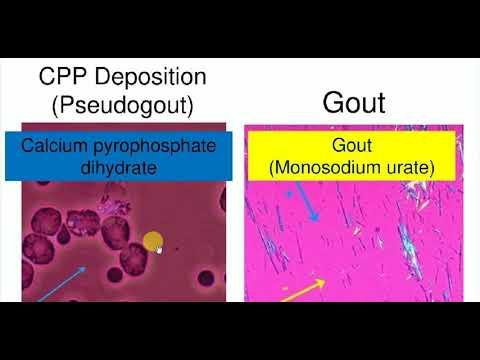 Medicine , RHEUMATOLOGY , 7 , Gout and Pseudogout