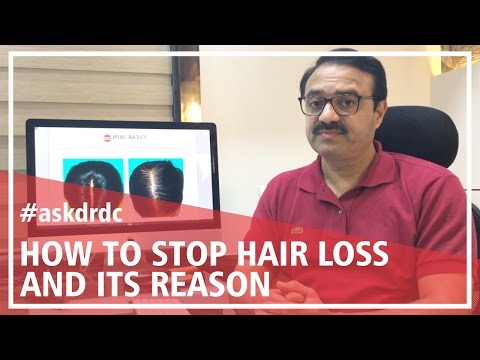 How to stop hair fall & causes of hair loss in teenage girls or women