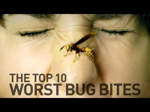 Top 10 Most Painful Bug Bites and Stings