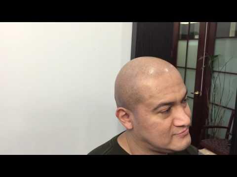 Eliminate shine/oil on head after scalp-micropigmentation