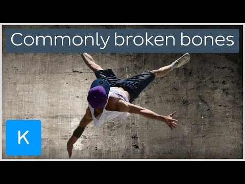 Most commonly broken bones in the Human body |Kenhub