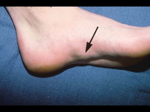 Bottom of the Foot Nodules & Bumps *Home Treatment*
