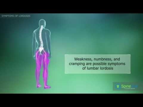 Lordosis. Symptoms