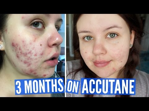 MY PLANS FOR ACNE SCARRING | Acne Vlog