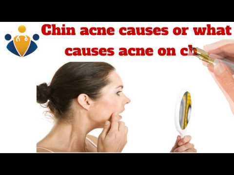 Acne under chin, Chin Acne Causes, Painful, Hormonal, Around under Chin & Treatments
