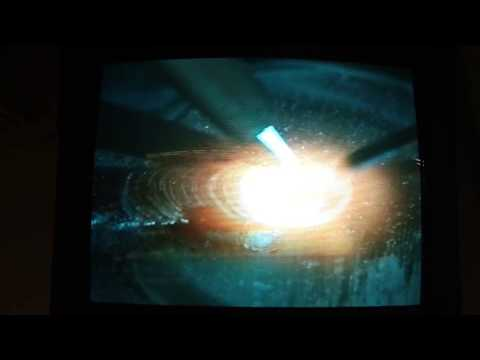 Oxy-Acetylene Fusion Welding