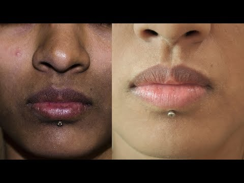 How To Remove Dark Spots, Black Patches, Hyper pigmentation _ Around Mouth | SuperWowStyle Prachi
