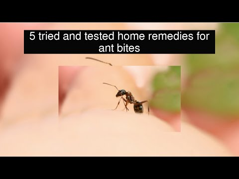 5 tried and tested home remedies for ant bites