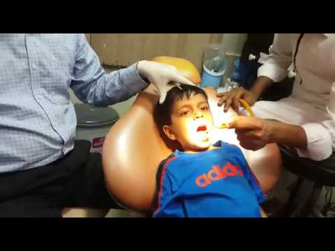 PAIN FREE DENTAL WORK, INJECTION & tooth removal by DR ABRAR