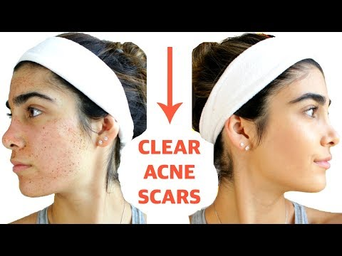CLEAR ACNE SCARS FAST | DIY Face Masks That WORK