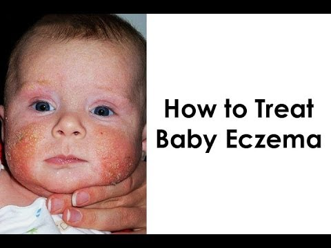 Eczema Home Treatment for Babies - 4 Things You Should Avoid When Treating Baby Eczema