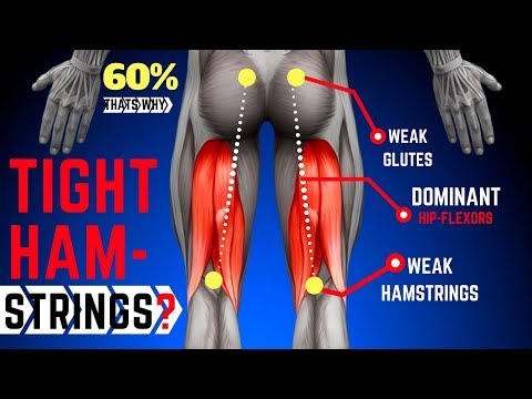 Why Your Hamstrings Are Always Tight | Anterior Pelvic Tilt | Fixing Up My Injuries