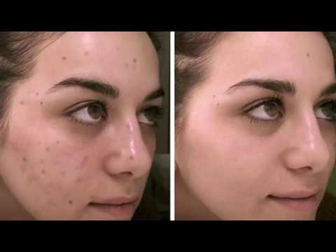 Remove Acne Scars Forever