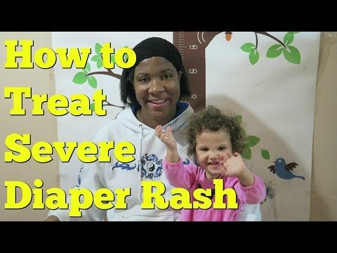 Severe Diaper Rash Treatment for Babies and Infants - The Organic Toddler