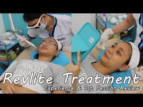 NAGPA-LASER SI ATI?! Revlite Treatment at Skin House Clinic!