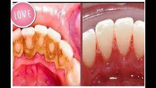 #x202b;رشيه على اسنانك وسوف يسقط جير الاسنان واحصلي على اسنان بيضاء كالؤلؤ من الاستعمال الاول#x202c;lrm;