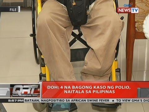 QRT: DOH: 4 na bagong kaso ng Polio, naitala sa Pilipinas