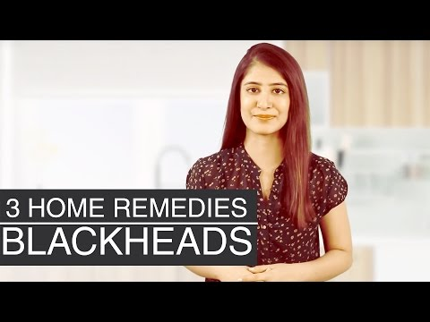 BLACKHEAD REMOVAL HOME REMEDIES | Get Rid Of Blackheads On Nose