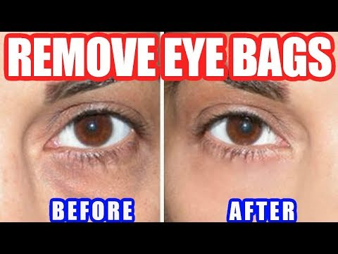 How to Get Rid of Bags Under Eyes – Best Way to Remove Under Eye Bags Naturally at Home