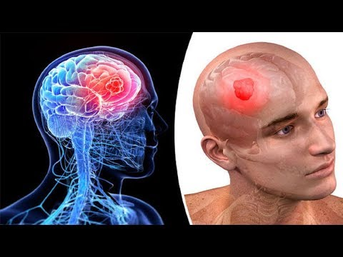 AWESOME TIPS fOR BRAIN CANCER - Brain Tumor Symptoms.