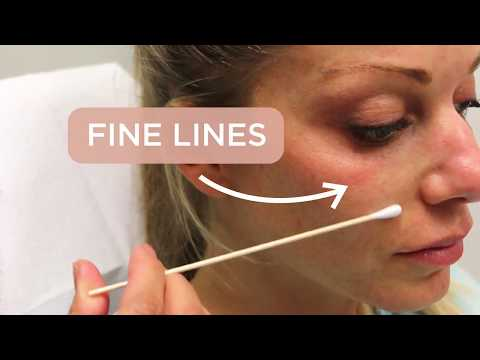 Microneedling: One Of The Most Popular Skin Rejuvenation Treatments