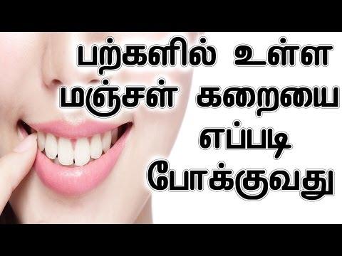 பற்களில் உள்ள மஞ்சள் கறையை எப்படி போக்குவது |  Teeth Yellow Stain Removing Home Remedy In Tamil