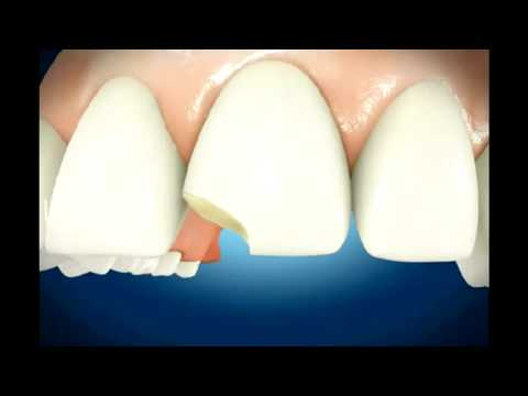 Broken Teeth-Repair-Dental Conduit UK