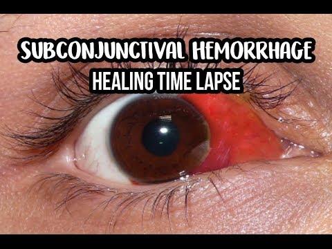 14 Days Healing Time Lapse: Broken Blood Vessel in Eye (Subconjunctival Hemorrhage)