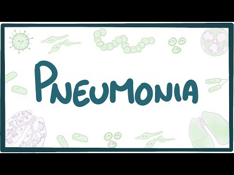 Pneumonia - causes, symptoms, diagnosis, treatment, pathology
