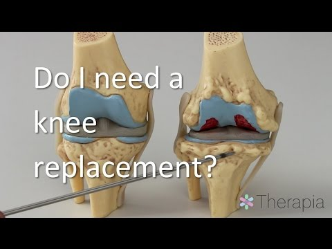 Do You Need A Knee Replacement?