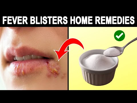 12 Amazing Home Remedies For Fever Blisters In Mouth